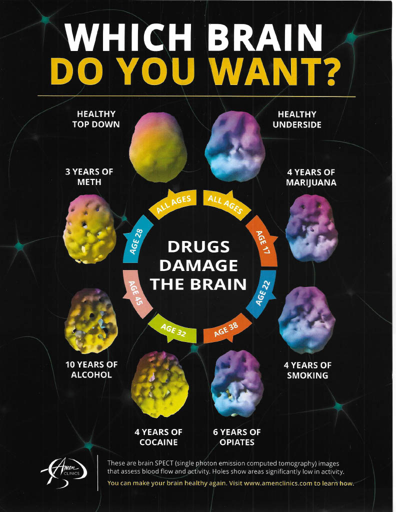 WHICH BRAIN DO YOU WANT1024_1